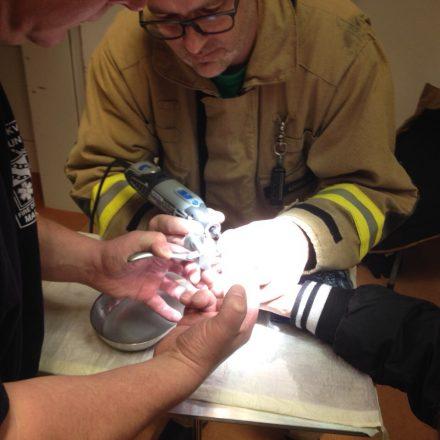 Der dicke Edelstahlring konnte mit den Werkzeugen des Klinikums nicht ertfernt werden.